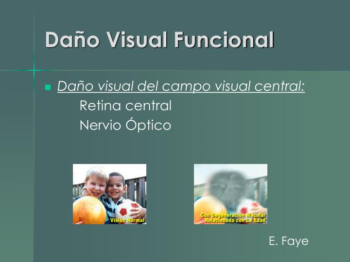Daño Visual Funcional