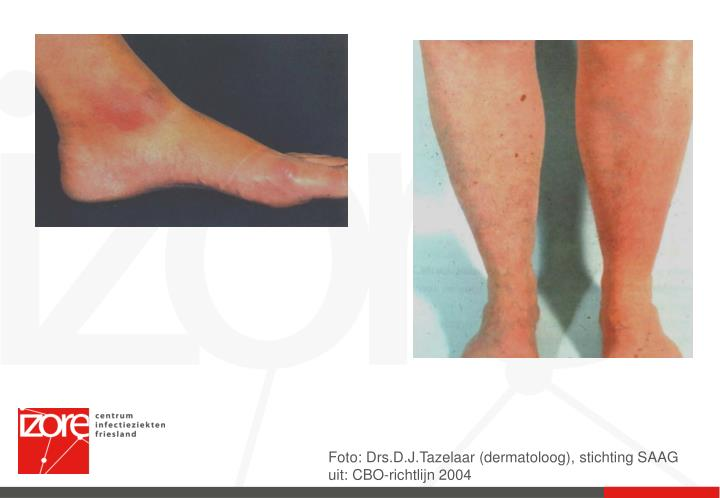 Foto: Drs.D.J.Tazelaar (dermatoloog), stichting SAAG