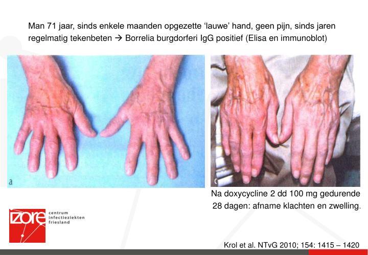Krol et al. NTvG 2010; 154: 1415 – 1420