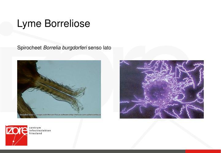 Lyme Borreliose
