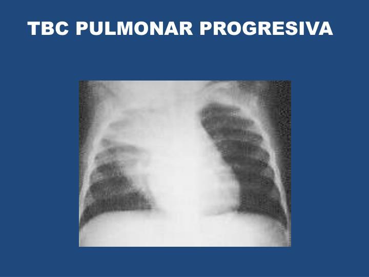 TBC PULMONAR PROGRESIVA