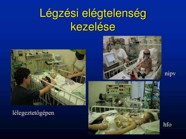 Légzési elégtelenség kezelése