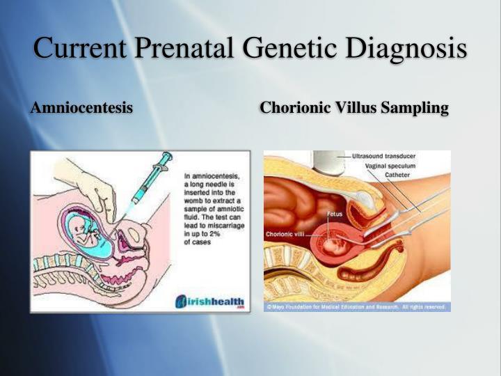 Current Prenatal Genetic Diagnosis