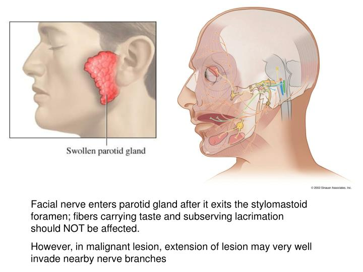 Facial nerve enters parotid gland after it exits the stylomastoid foramen; fibers carrying taste and subserving lacrimation should NOT be affected.