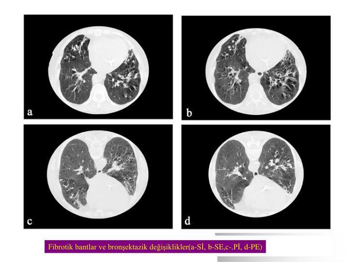 Fibrotik bantlar ve bronşektazik değişiklikler(a-Sİ, b-SE,c-.Pİ, d-PE)