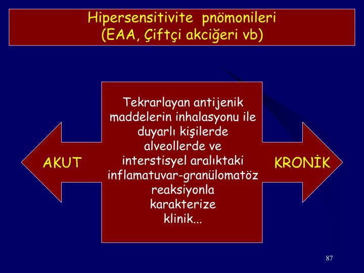 Hipersensitivite  pnömonileri
