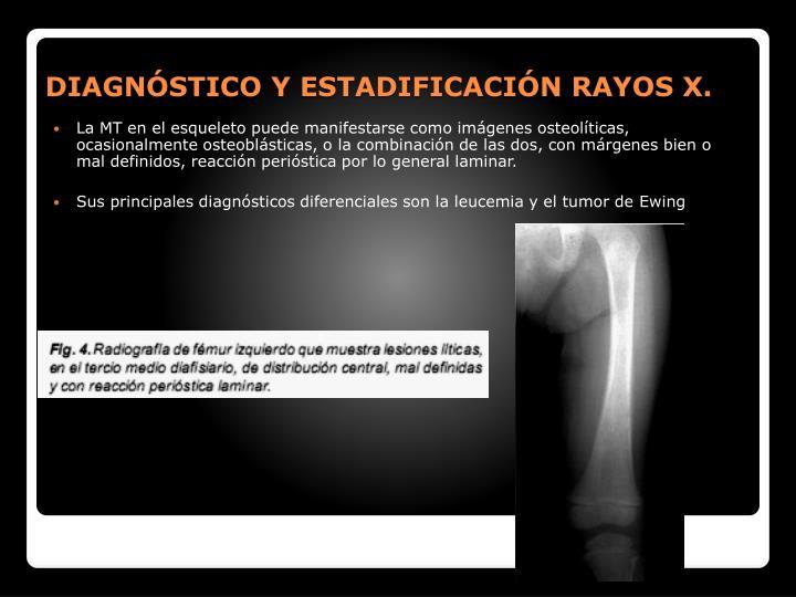 DIAGNSTICO Y ESTADIFICACIN RAYOS X.