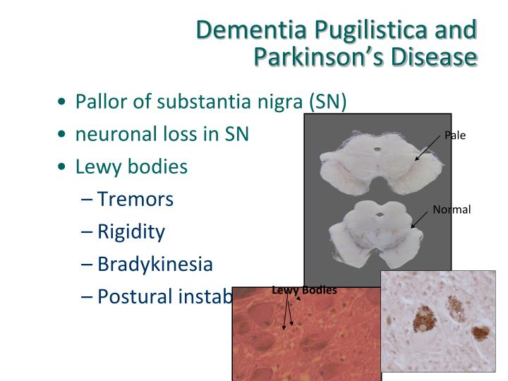 Dementia Pugilistica and Parkinson's Disease