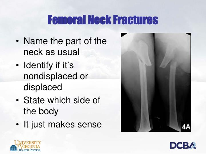 Femoral Neck Fractures