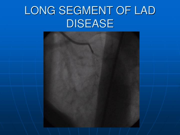 LONG SEGMENT OF LAD DISEASE
