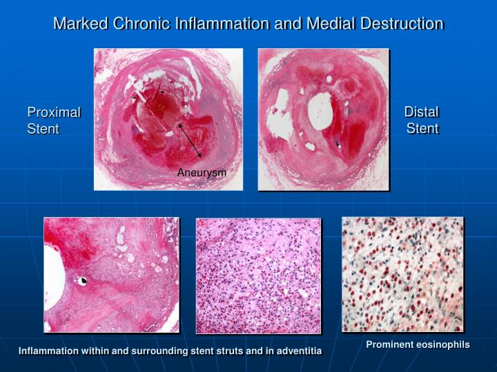 Marked Chronic Inflammation