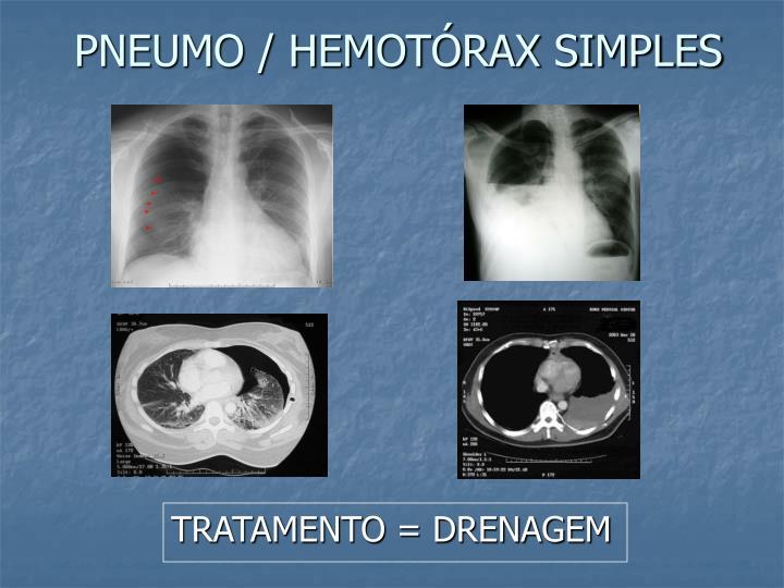PNEUMO / HEMOTÓRAX SIMPLES