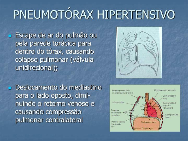 PNEUMOTÓRAX HIPERTENSIVO