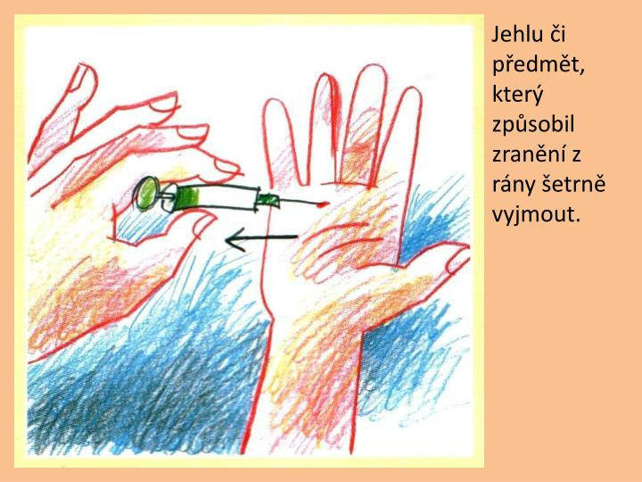Jehlu i pedmt, kter zpsobil zrann z rny etrn vyjmout.