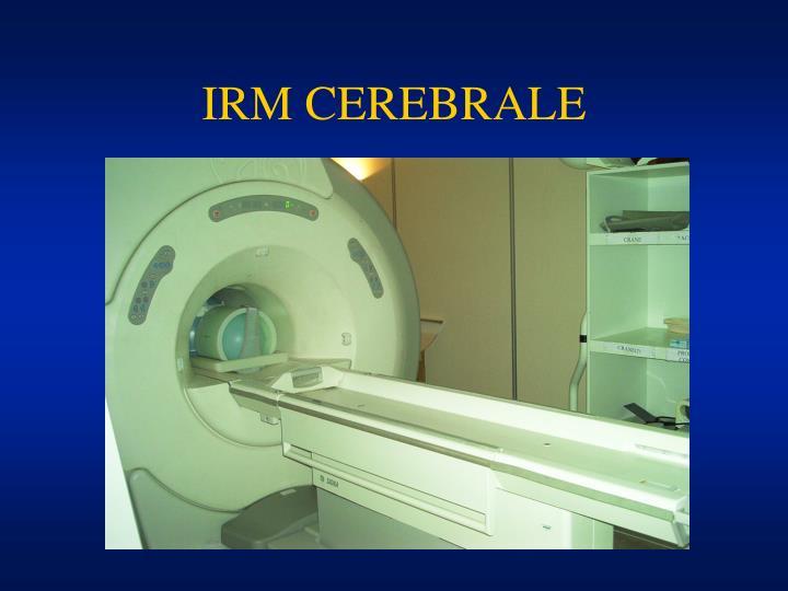 IRM CEREBRALE