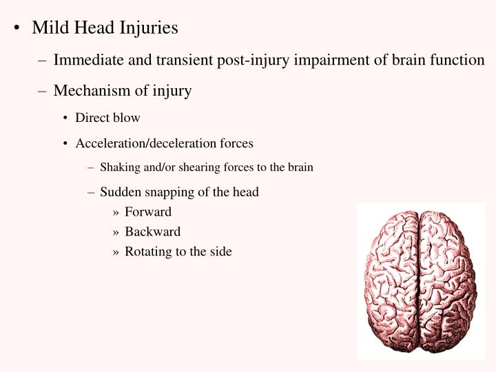 Mild Head Injuries