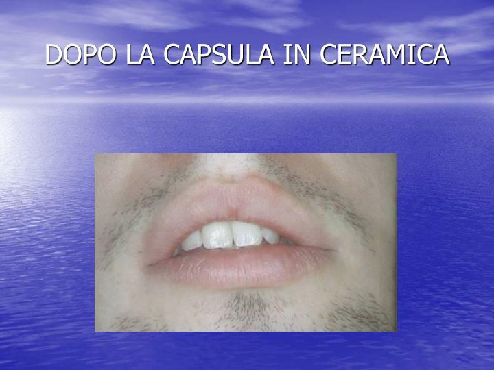DOPO LA CAPSULA IN CERAMICA