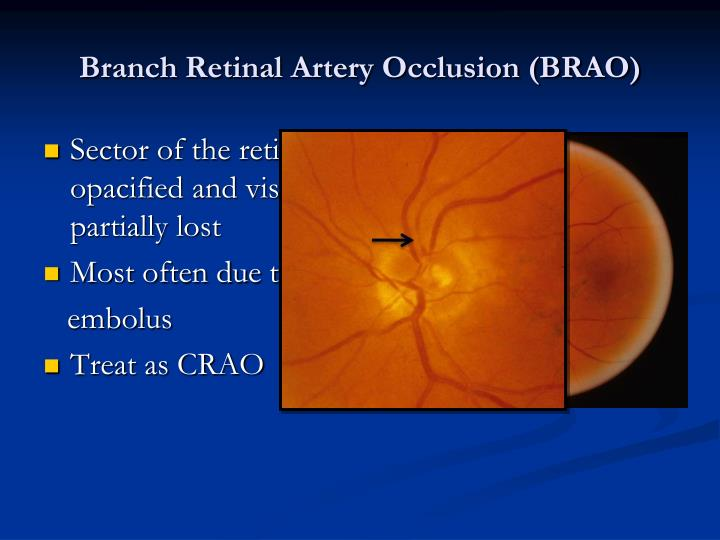 Branch Retinal Artery Occlusion (BRAO)