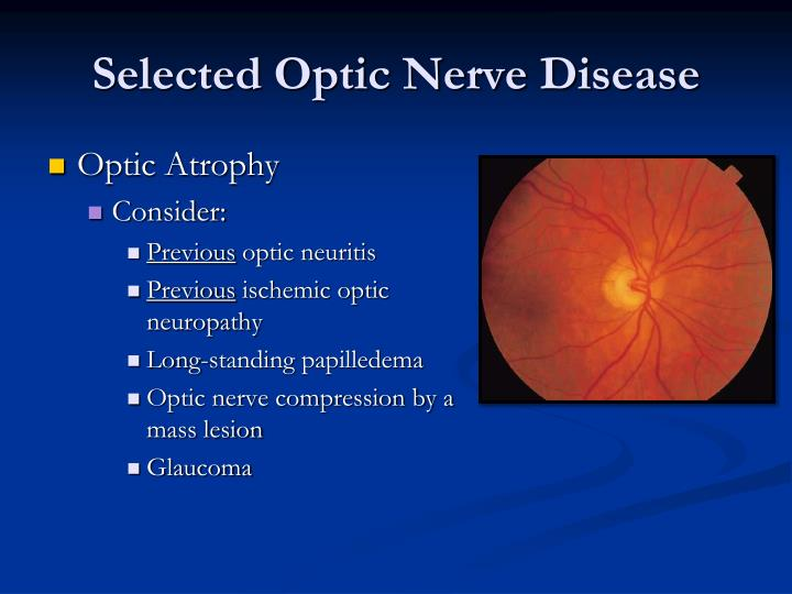 Selected Optic Nerve Disease