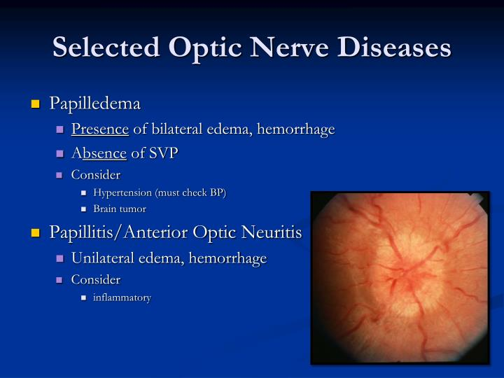 Selected Optic Nerve Diseases