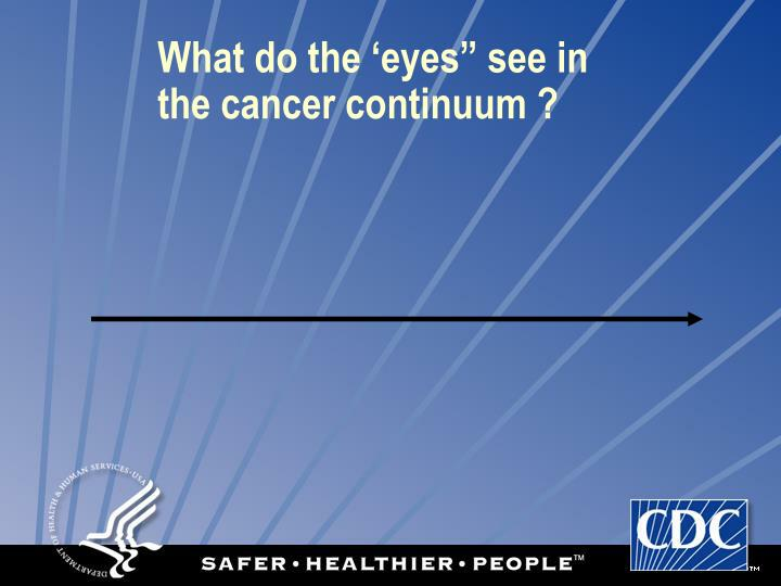 """What do the 'eyes"""" see in"""