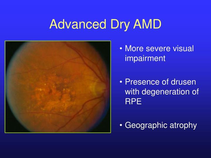 Advanced Dry AMD
