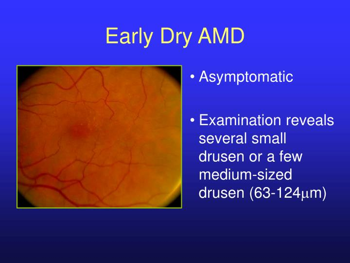 Early Dry AMD