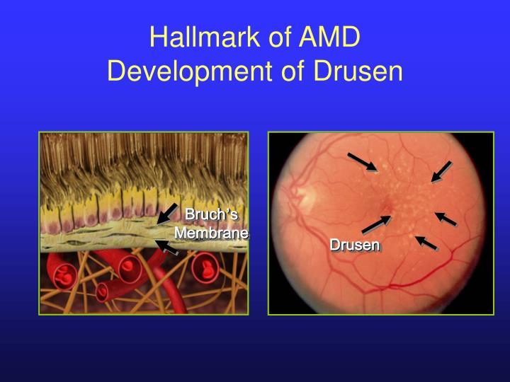 Hallmark of AMD