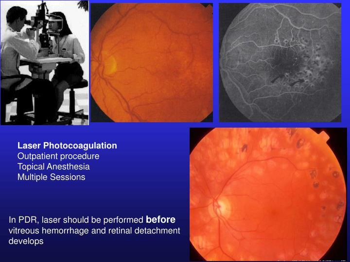 Laser Photocoagulation