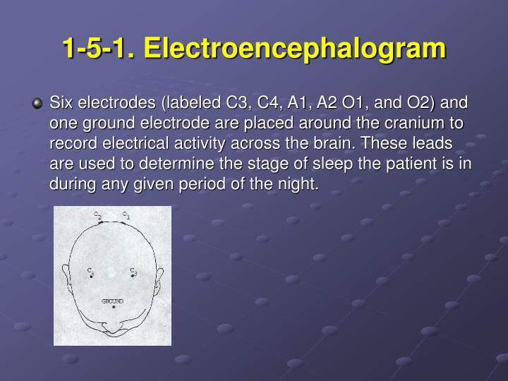1-5-1. Electroencephalogram