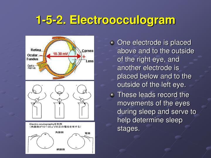1-5-2. Electroocculogram