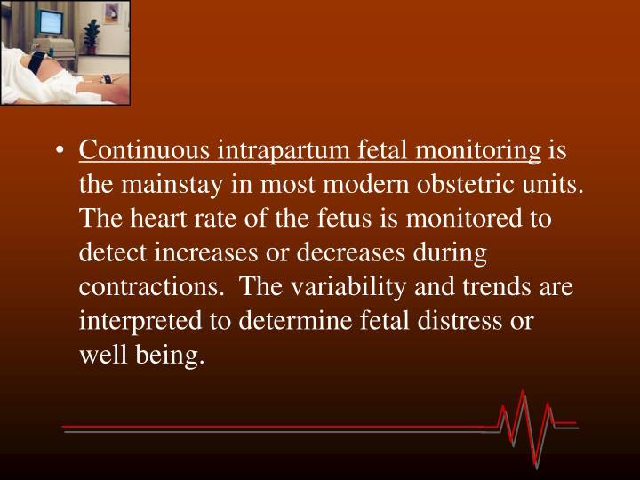 PPT - Fetal Distress PowerPoint Presentation - ID:4461011