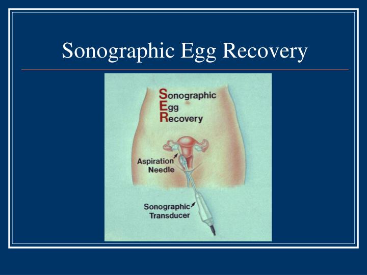 Sonographic Egg Recovery