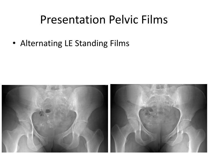 Presentation Pelvic Films