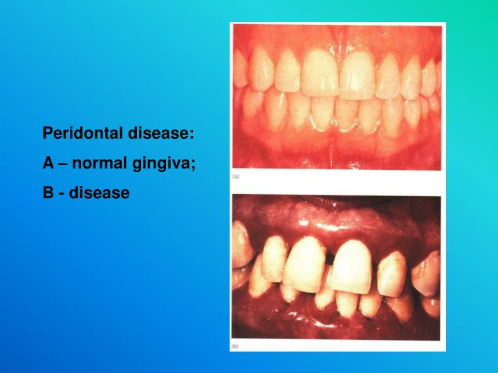 Peridontal disease:
