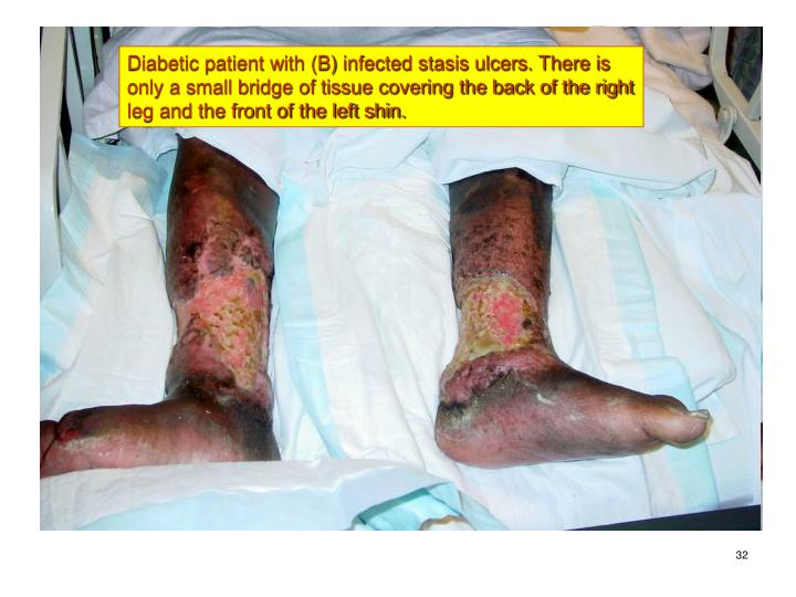 Diabetic patient with (B) infected stasis ulcers. There is only a small bridge of tissue covering the back of the right leg and the front of the left shin.