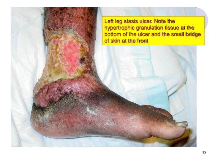 Left leg stasis ulcer. Note the hypertrophic granulation tissue at the bottom of the ulcer and the small bridge of skin at the front