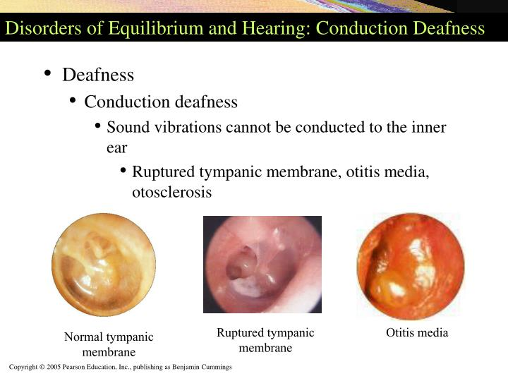 Disorders of Equilibrium and Hearing: Conduction Deafness