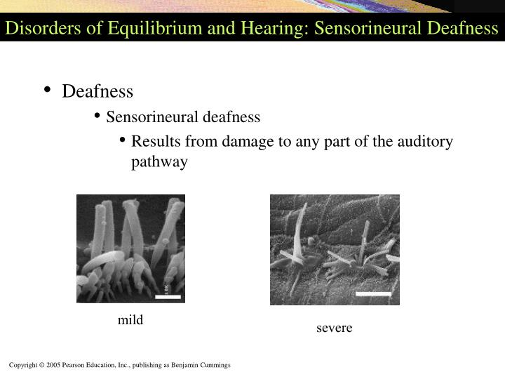 Disorders of Equilibrium and Hearing: Sensorineural Deafness