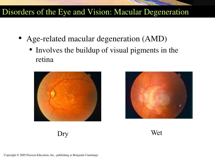 Disorders of the Eye and Vision: Macular Degeneration