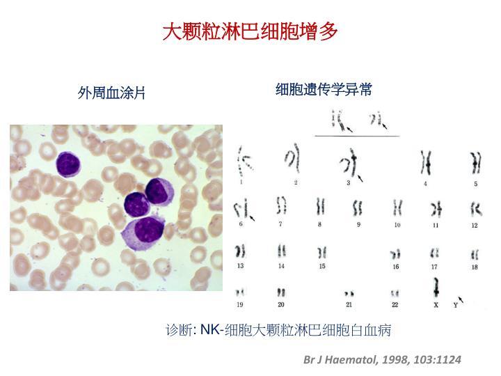 大颗粒淋巴细胞增多