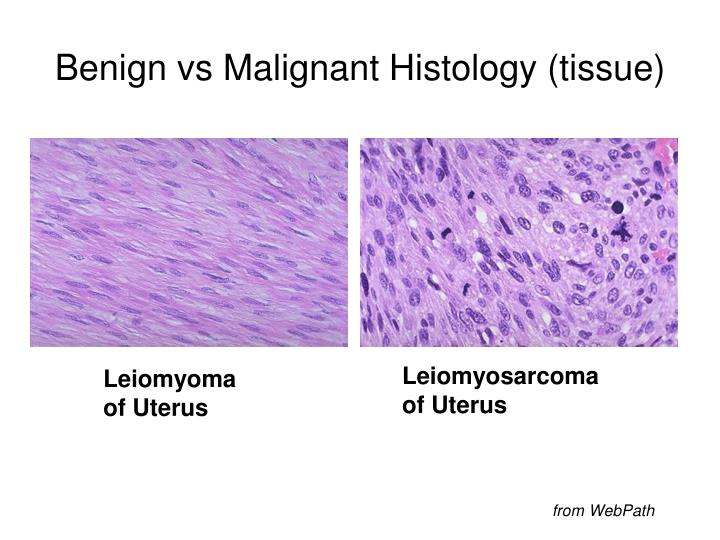 Benign vs Malignant Histology (tissue)