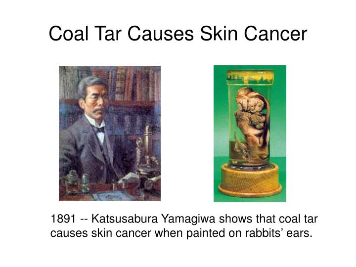 Coal Tar Causes Skin Cancer