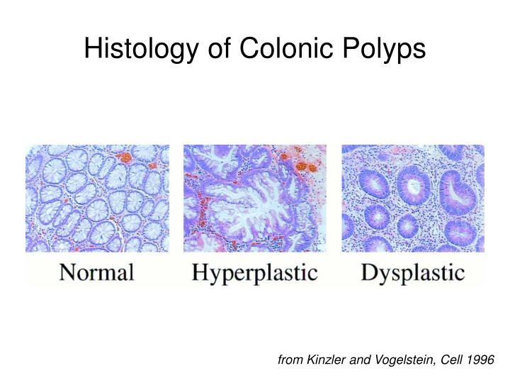 Histology of Colonic Polyps