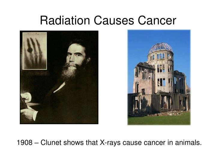 Radiation Causes Cancer