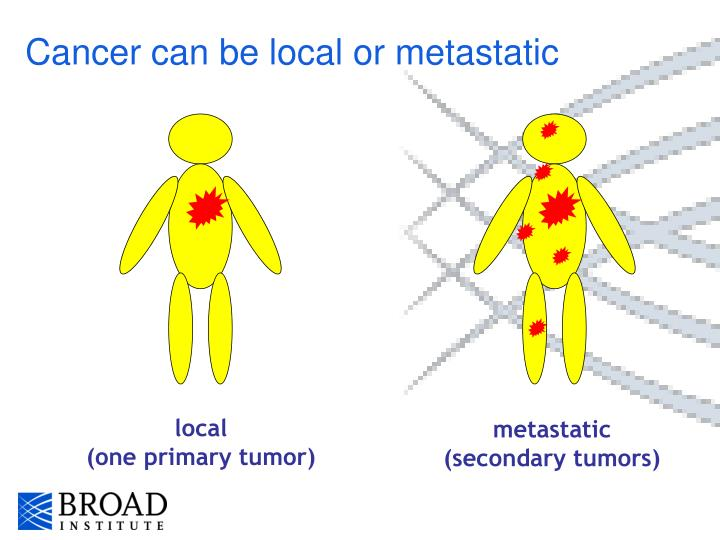 Cancer can be local or metastatic
