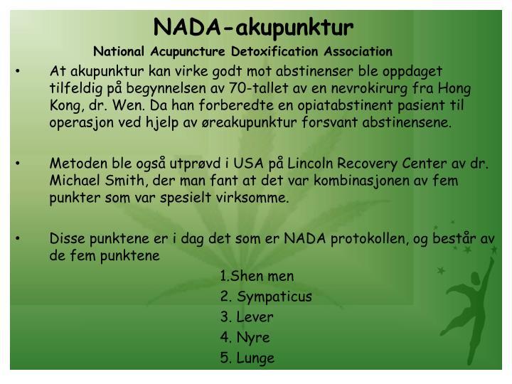 NADA-akupunktur