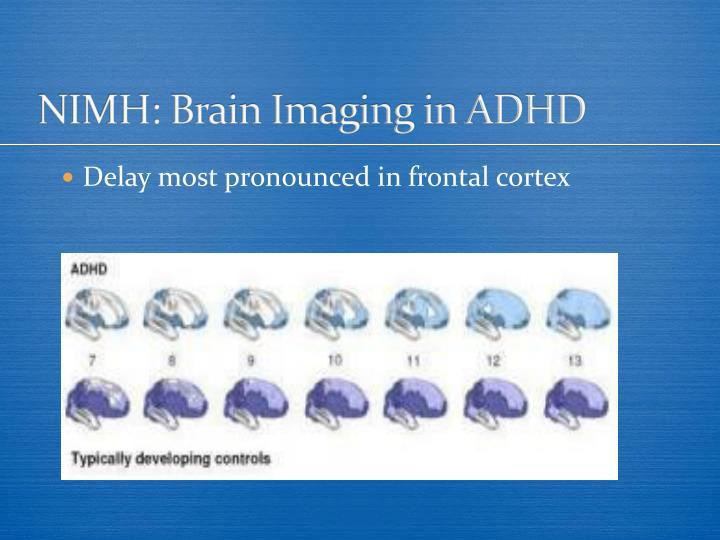 NIMH: Brain Imaging in ADHD