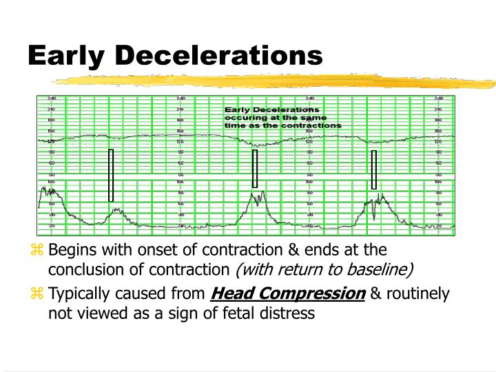 Early Decelerations