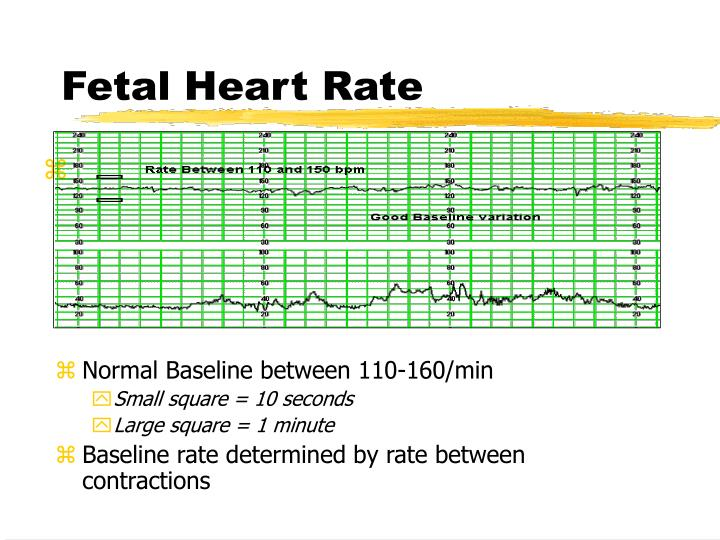 Fetal Heart Rate